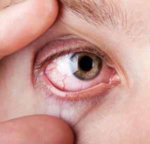 magas vérnyomás a szem vérzésével vérfű tinktúra magas vérnyomás ellen