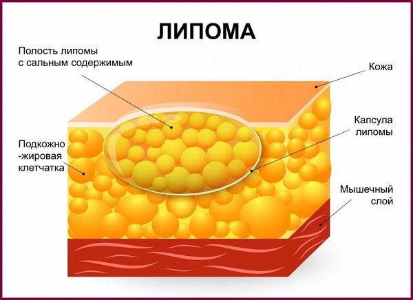 hipertónia tulajdonságai infúziók magas vérnyomás kezelésére