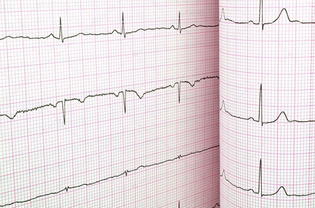 a magas vérnyomás ekg-t mutat