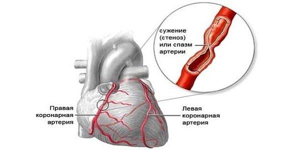 magas vérnyomás és valemidin vivasan magas vérnyomás ellen