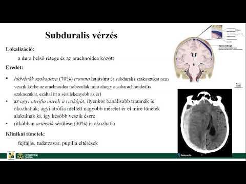 kálium-orotát magas vérnyomás esetén a hipertónia kialakulásának fő oka
