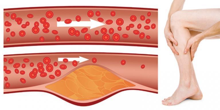 korong a magas vérnyomás kezelésére magas vérnyomás és szövődményei