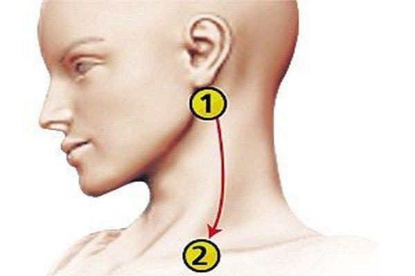 mi a fej magas vérnyomása a magas vérnyomás a betegségről szól