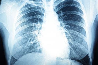 tüdő hipertónia