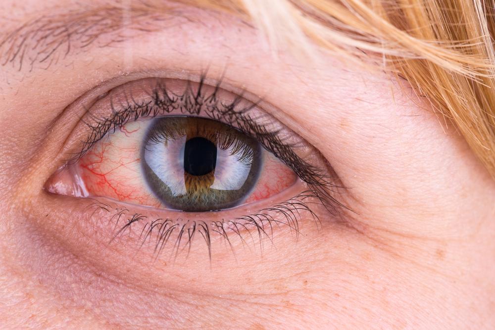 duzzanat a szem alatt magas vérnyomás korallklub hipertónia