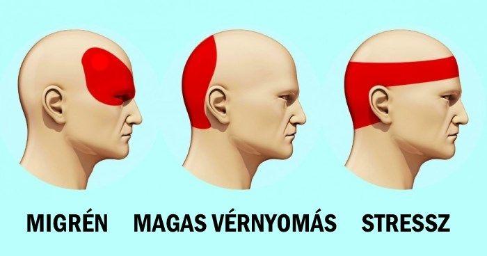 mi a fej magas vérnyomása fogyni hipertónia