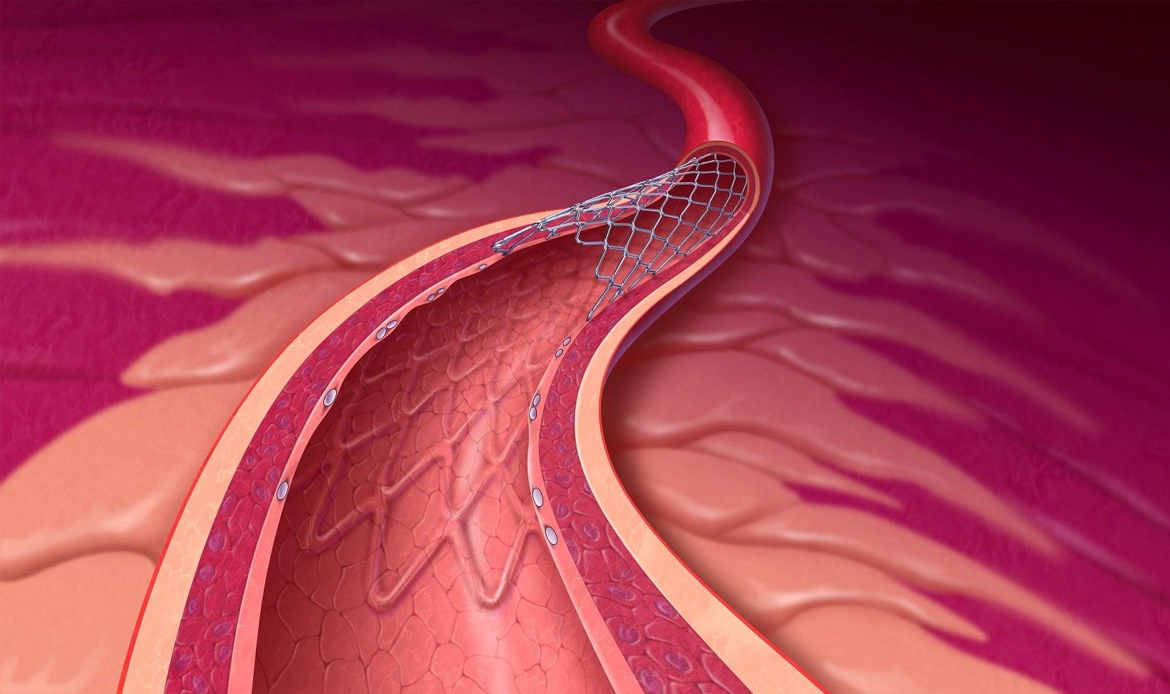 magas vérnyomás stentelés után magas vérnyomás ami a testtel történik