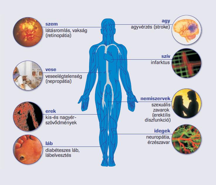 a cukorbetegség a hipertónia oka stádiumú és fokú magas vérnyomás