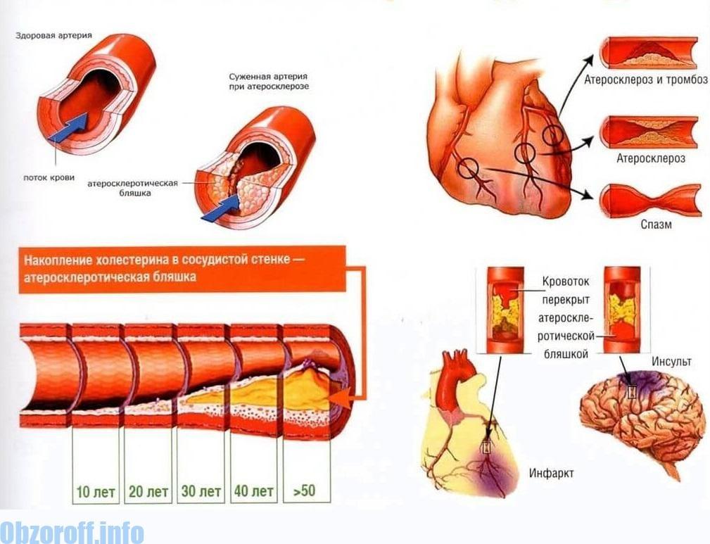 glükofág és magas vérnyomás fáj a fej magas vérnyomásban