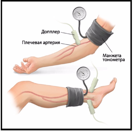 leo bokeria a magas vérnyomásról videó magas vérnyomás stroke megelőzése