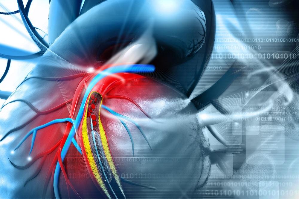 magas vérnyomás stentelés után mi a stádiumú magas vérnyomás