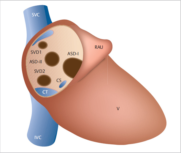asd 2 hipertónia kezelésére