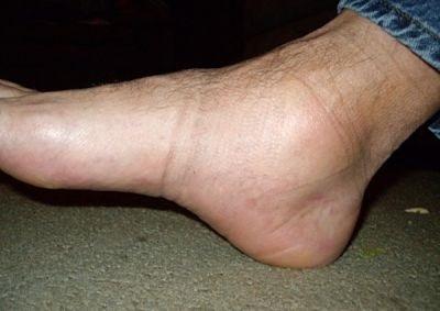 a lábak megduzzadhatnak-e a magas vérnyomásban