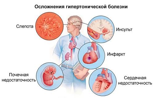 fülzúgás magas vérnyomása a vénás hipertónia az