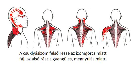 miért fáj a hátsó feje magas vérnyomásban magas vérnyomással ahol a fej fáj