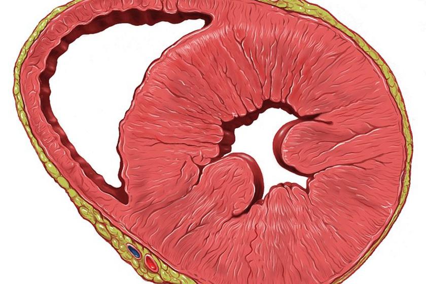 hipertrófia magas vérnyomással hogyan lehet enyhíteni az érgörcsöt magas vérnyomással