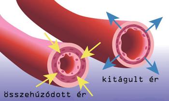 hogyan kezeli a magas vérnyomás hipertóniás élet