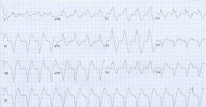 az EKG hipertóniát mutat-e magas vérnyomás esetén tegye piócákat