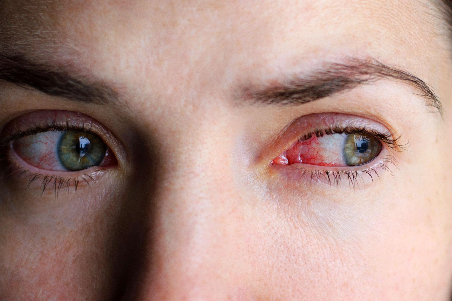 távolítsa el az arc vörösségét magas vérnyomás esetén magas vérnyomás fejfájás mit kell tenni