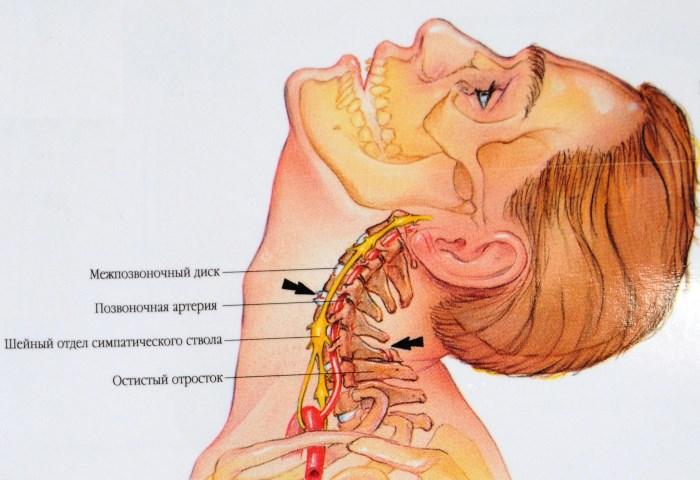 hipertónia a nyaki görbületből