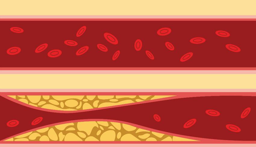 lehetséges-e vazobralis magas vérnyomás esetén
