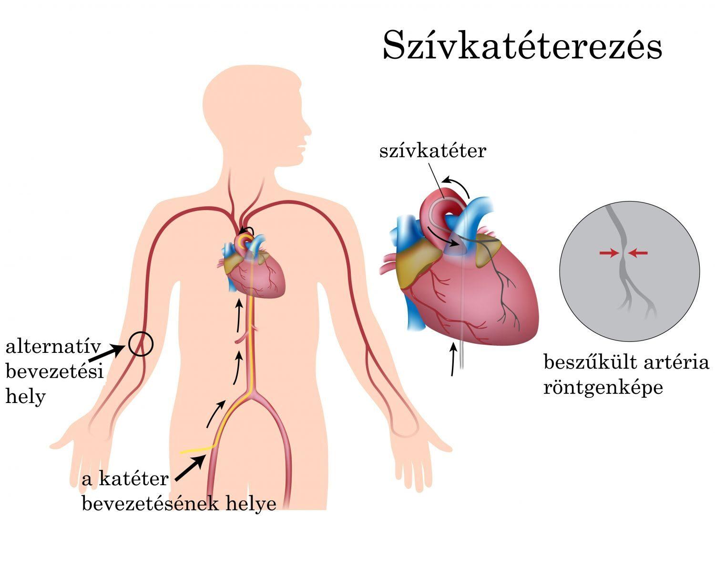 folyamatos gyógyszeres kezelés magas vérnyomás ellen röntgen magas vérnyomás esetén