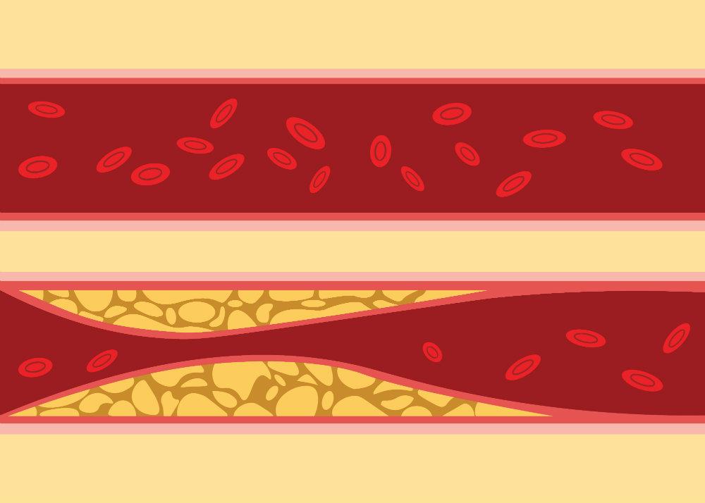 hasznos magas vérnyomás masszázshoz diéta a cukorbetegség magas vérnyomásához