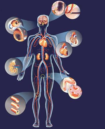 milyen gyógyszer a magas vérnyomás ellen