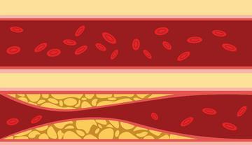 magas vérnyomás B kategóriánként milyen hipertónia miatt