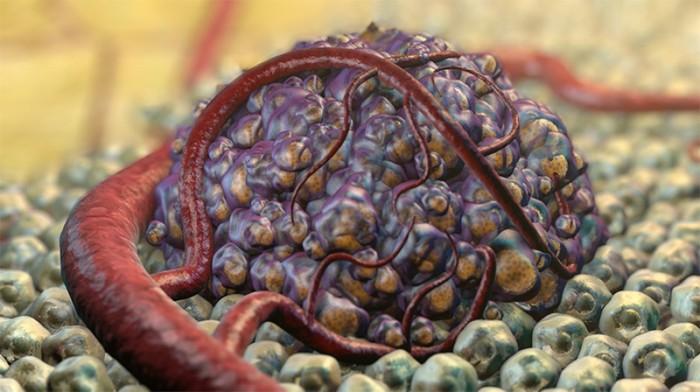magas vérnyomás rák rosszindulatú 1 csoport fogyatékosság hipertónia