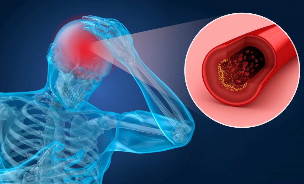 cikk hipertónia és cukor