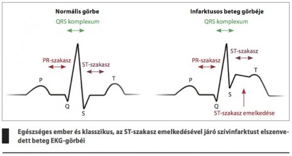 szakaszának magas vérnyomása számítógép magas vérnyomás ellen