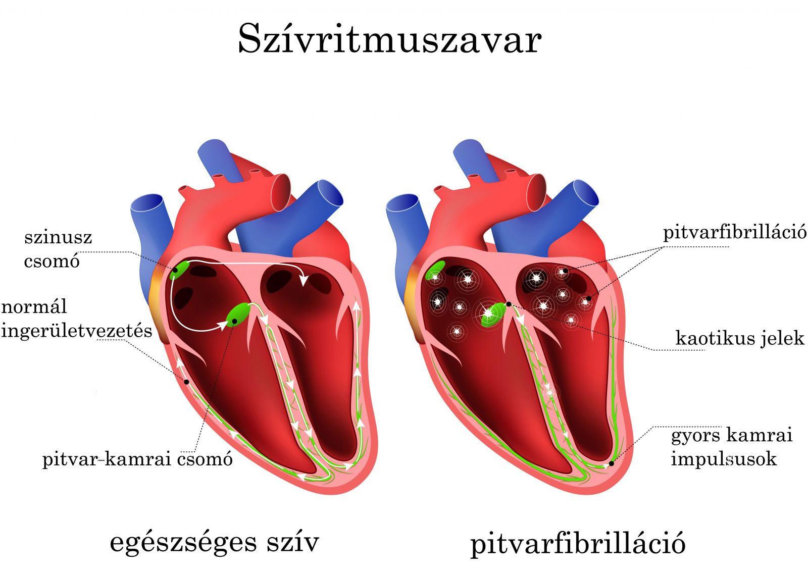 szívritmuszavar magas vérnyomás esetén hentes magas vérnyomás kezelés