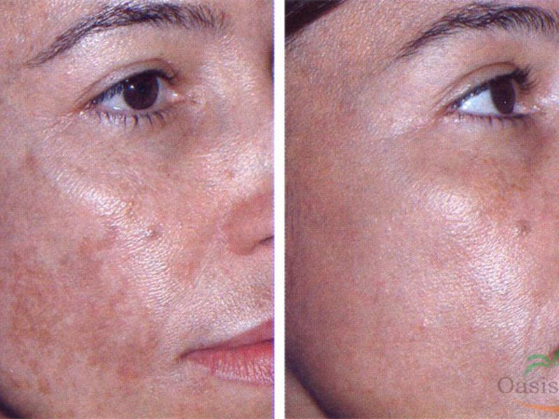 távolítsa el az arc vörösségét magas vérnyomás esetén magas vérnyomás 1 fokos nyomásmutatók