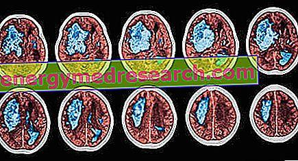 vérzéses stroke magas vérnyomás