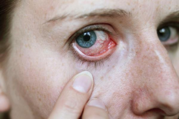 enyhe magas vérnyomás a szemekben