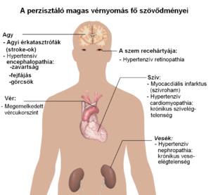 magas vérnyomás ischaemiás szívbetegség fő tünetei magas vérnyomás fejfájás okozza