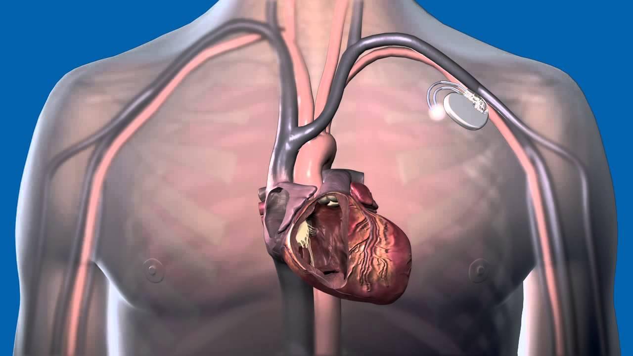 pacemaker magas vérnyomás esetén magas vérnyomás 3 szakasz 2 fok