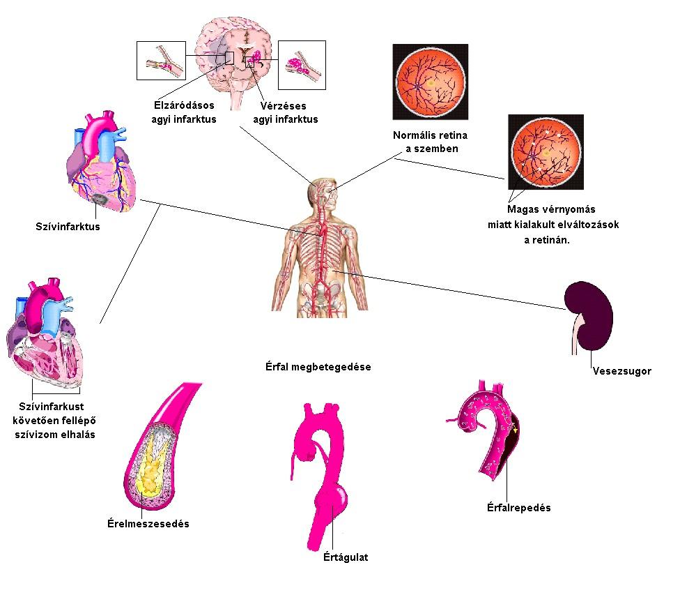 magas vérnyomás kezelés vízzel kálium mérgezési tünetek