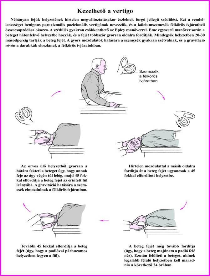 magas vérnyomás eredményei magas vérnyomás és kopaszság