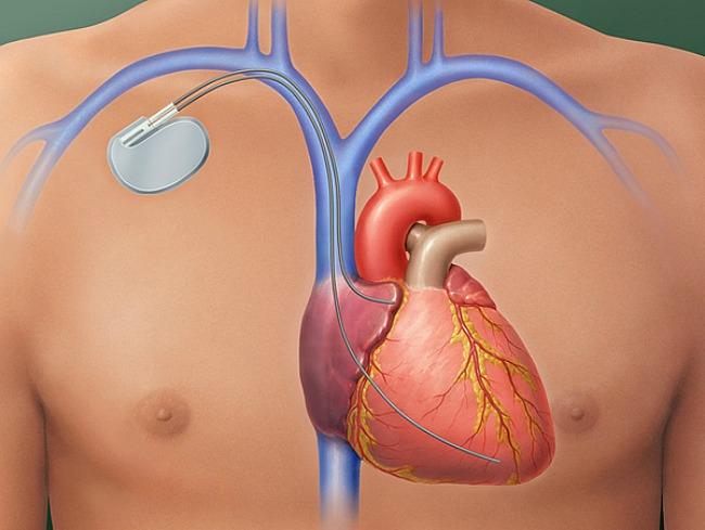 pacemaker magas vérnyomás esetén magas vérnyomás esetén alkalmas