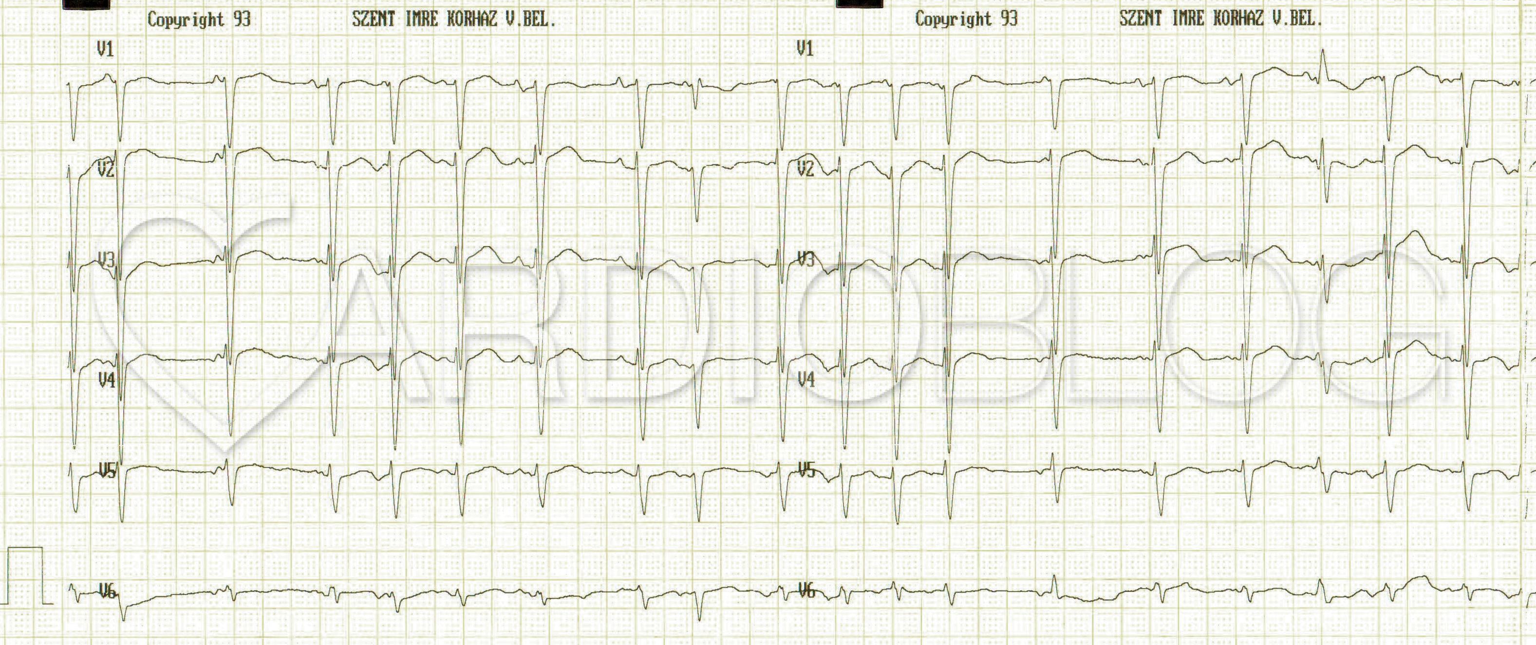 Mi az EKG, hogyan kell megfejteni magát - Anatómia November