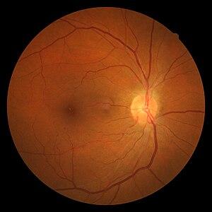hipertónia retinopathia magas vérnyomás szívbetegség