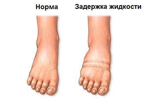 forró víz a magas vérnyomású lábak számára