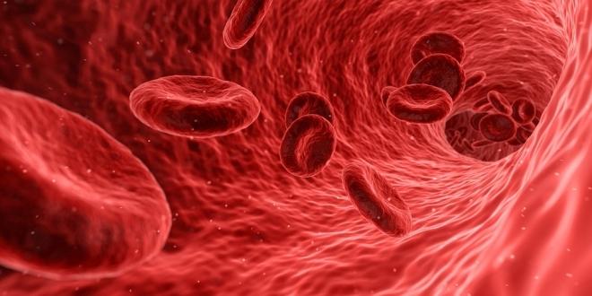 magas vérnyomás esetén vérszegénység lehet